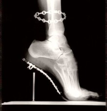 High Heel shoe dangers